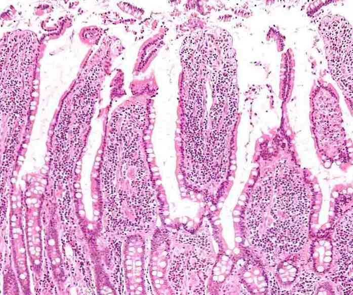 Intestinal Villi Definition, struktur och betydelse