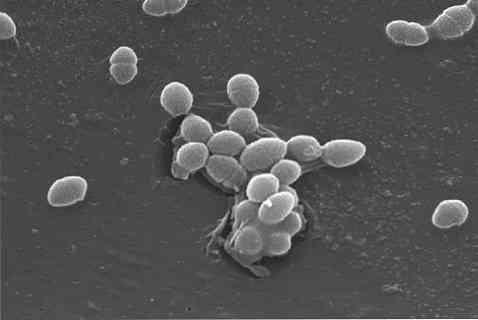 a varikózis oka a lábakon fiatalon